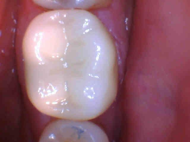 Cracked Tooth Protected with Full Coverage Crown