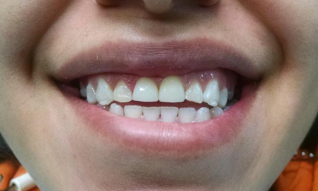 Crowns for Decayed and Damaged Front Teeth