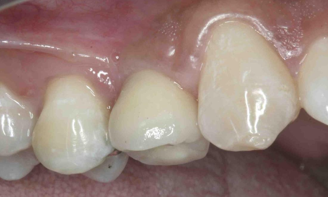 Dental Implant for One Tooth
