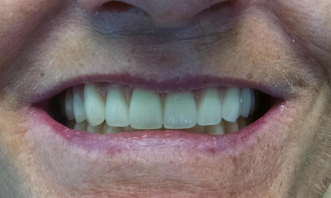 Removal of Failing Teeth and Beautiful Dentures
