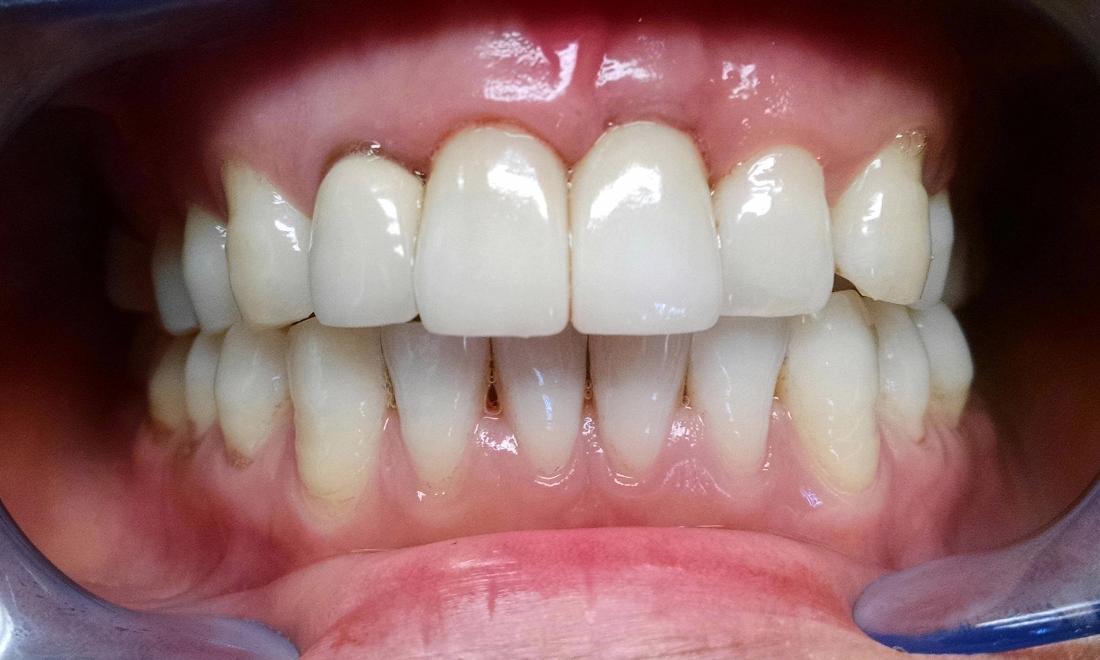 Best Dental Crown Material For Front Teeth - Teeth Poster