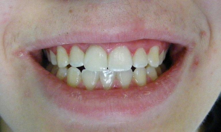 Crown-for-a-Broken-Front-Tooth-After-Image