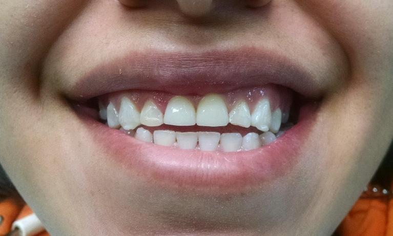 Crowns-for-Decayed-and-Damaged-Front-Teeth-After-Image