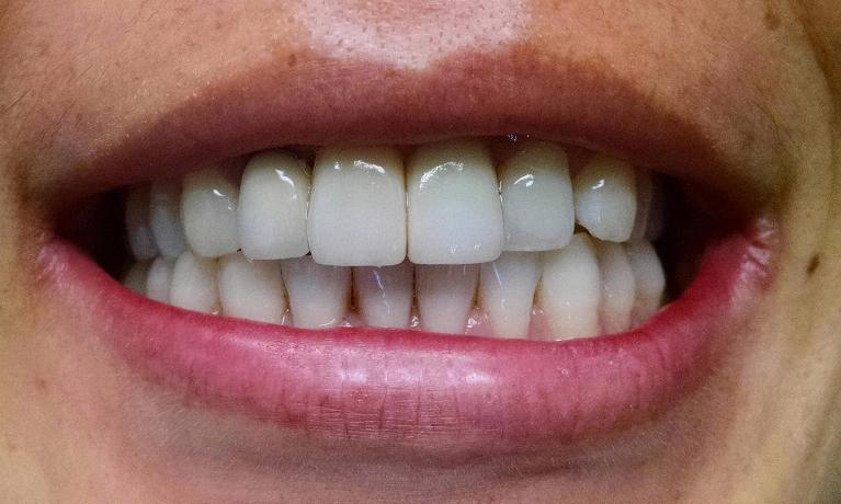 Dental-Implant-for-Front-Tooth-and-Crown-for-Front-Tooth-After-Image