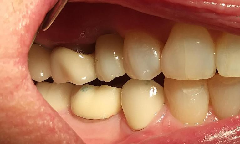 Dental-Implant-with-Sinus-Lift-After-Image