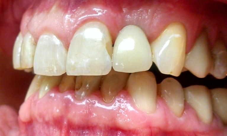 Front-Tooth-Replaced-with-Dental-Implant-and-Crown-After-Image