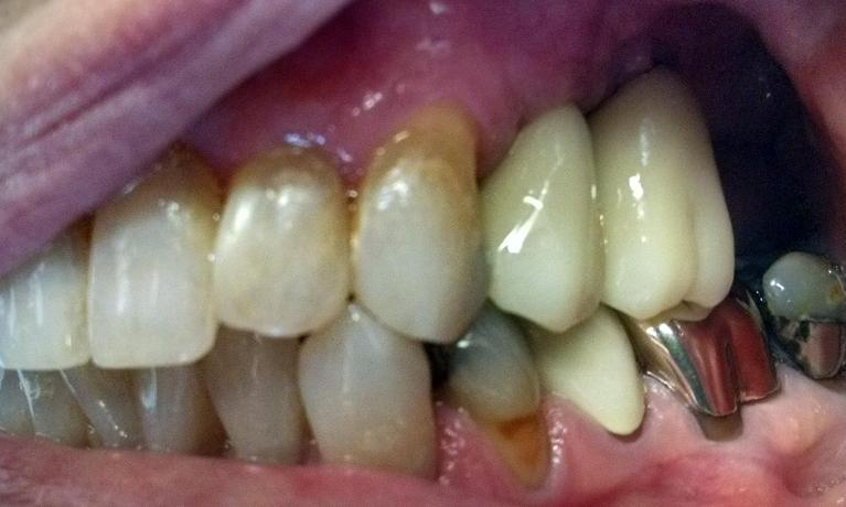 Implants-for-Back-Teeth-After-Image