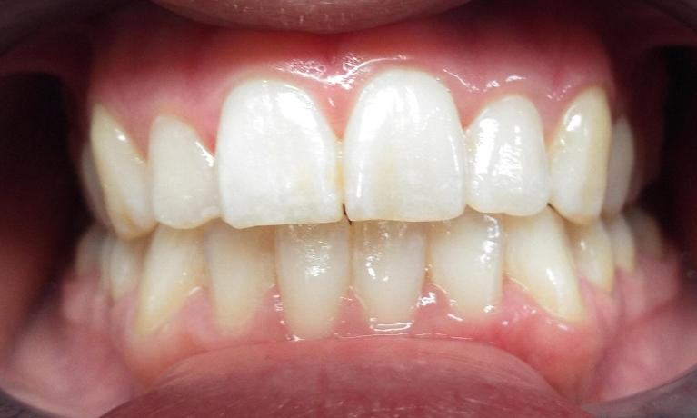Internal-Whitening-of-Front-Tooth-after-Root-Canal-After-Image