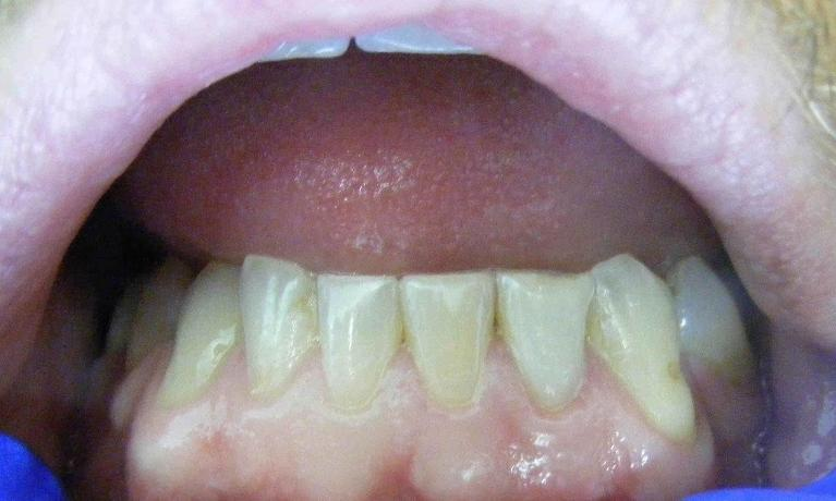 Internal-Whitening-of-a-Dark-Tooth-After-Image