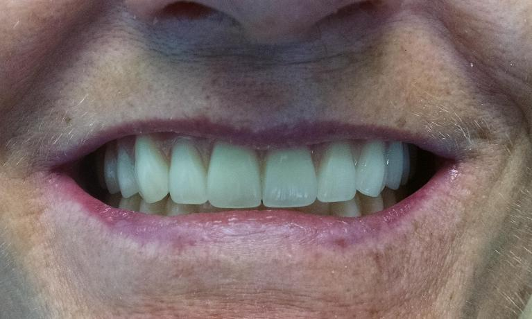 Removal-of-Failing-Teeth-and-Beautiful-Dentures-After-Image