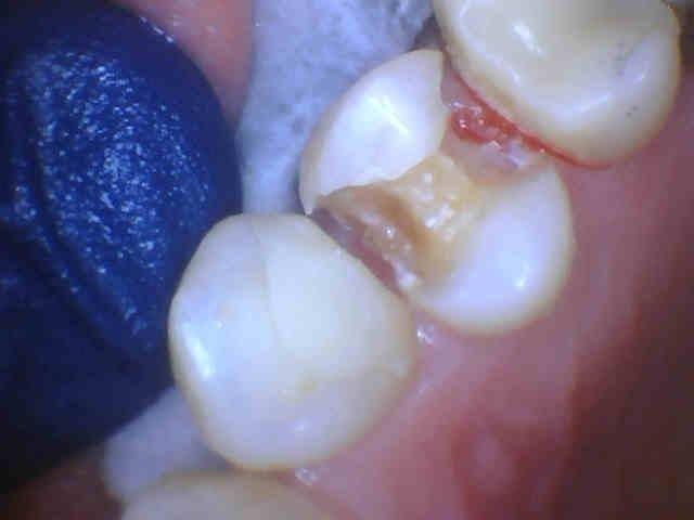 After removal of fillings showing decay