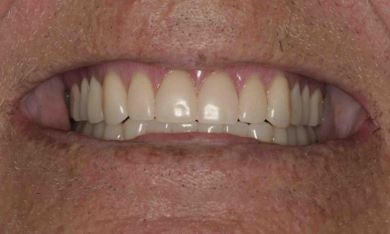 Implant-Retained-Dentures-After-Image