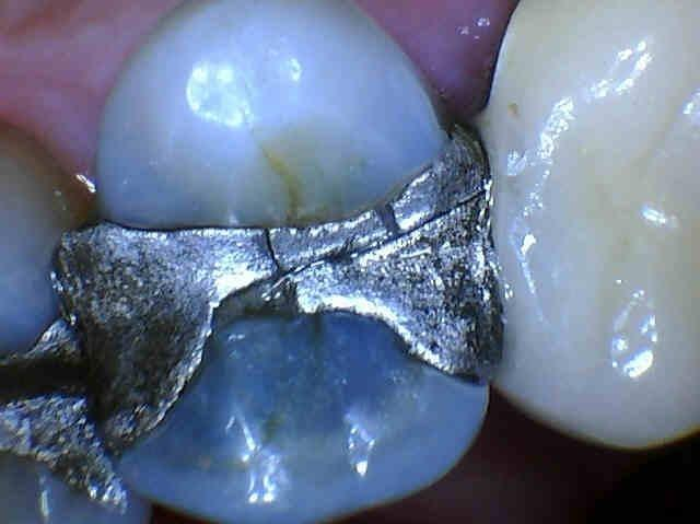 Cracked-Silver-Filling-Removed-and-Replaced-with-Composite-Before-Image