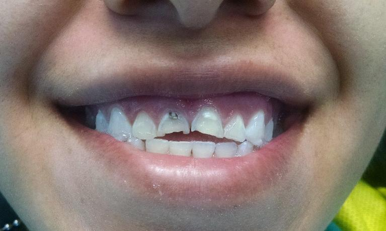 Crowns-for-Decayed-and-Damaged-Front-Teeth-Before-Image