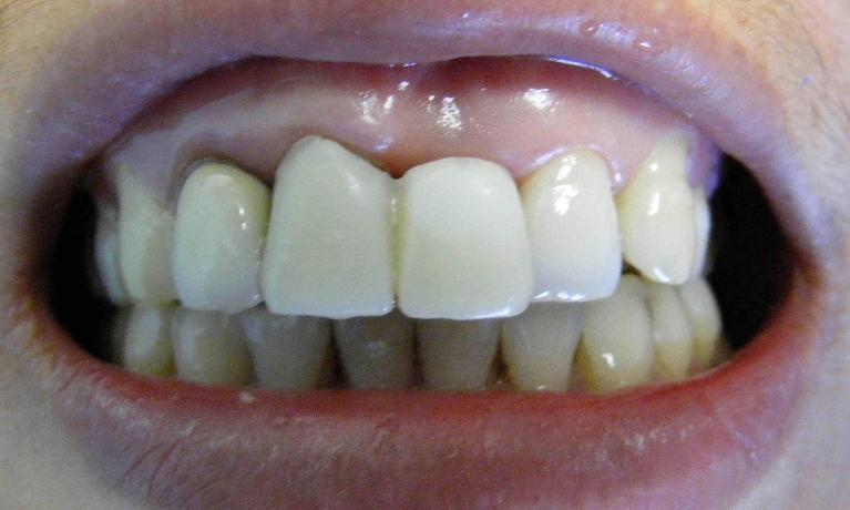 Dental-Implant-for-Front-Tooth-and-Crown-for-Front-Tooth-Before-Image