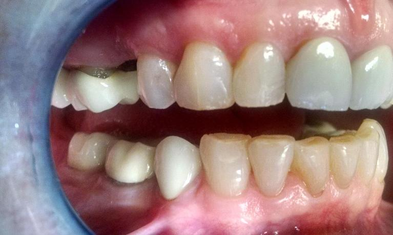 Dental-Implant-with-Sinus-Lift-Before-Image