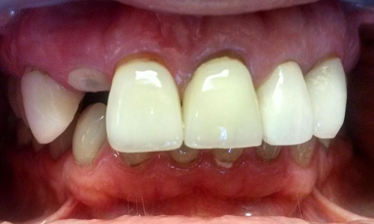 Front-Tooth-Dental-Implant-Before-Image