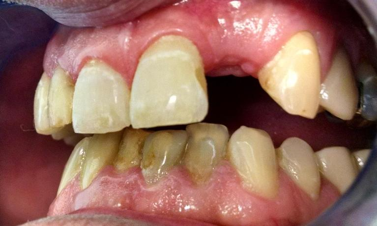 Front-Tooth-Replaced-with-Dental-Implant-and-Crown-Before-Image