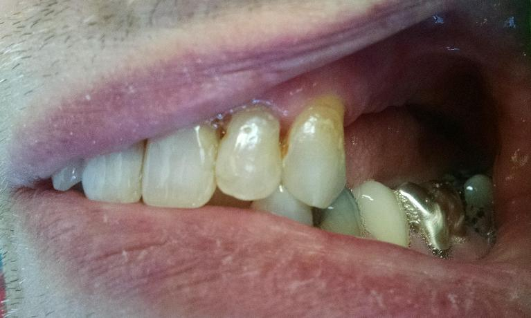 Implants-for-Back-Teeth-Before-Image