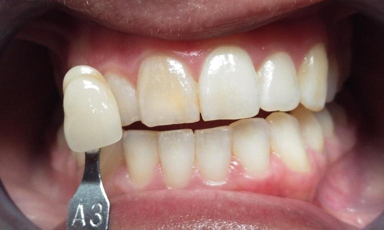 Internal-Whitening-of-Front-Tooth-after-Root-Canal-Before-Image